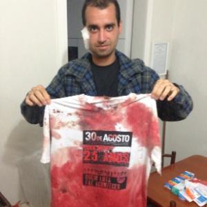 Affonso Cardoso Aquiles mostra camiseta que usou para estancar o sangue - Lucas Gabriel Marins/UOL