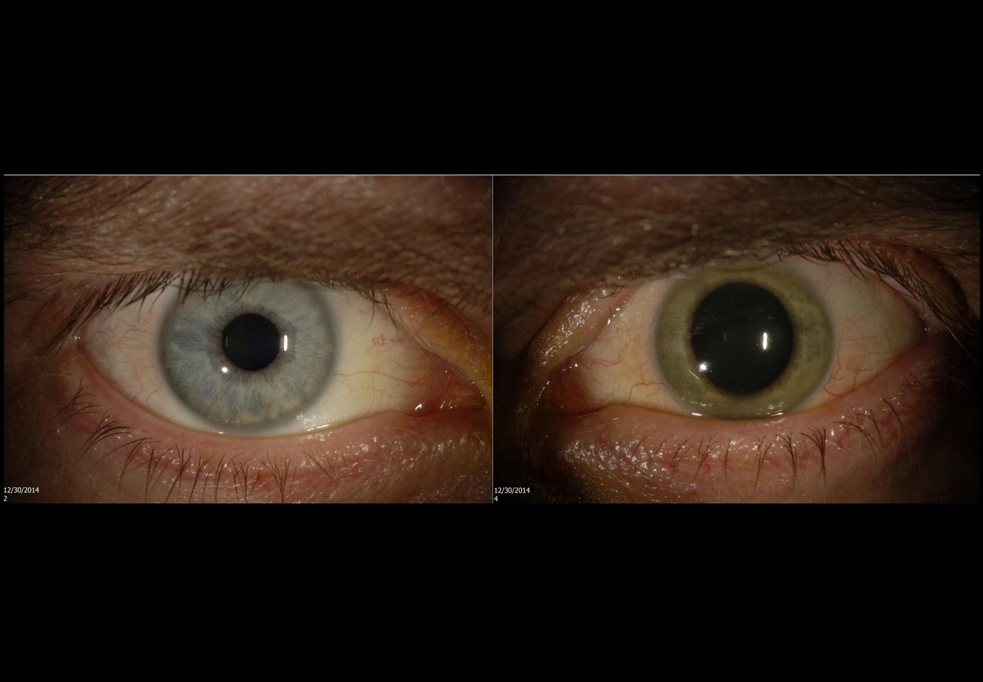 Ebola altera cor de olho de médico de azul para verde