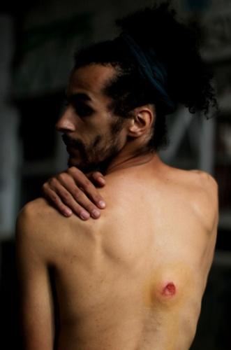 29.mai.2015 - O estudante de artes cênicas Franciel de Souza mostra marca do tiro de bala de borracha em suas costas após o confronto entre funcionários e estudantes da Universidade de São Paulo (USP) e policiais militares