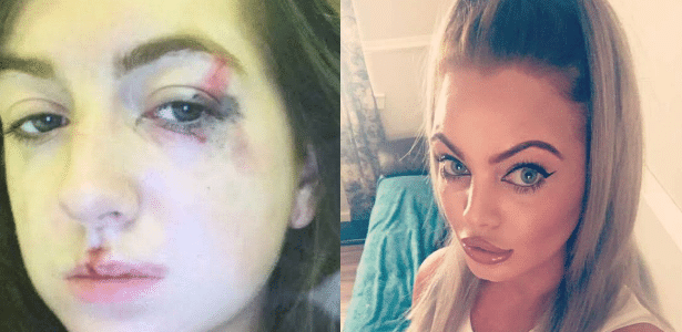 Emily Campbell (esq.) sofreu ferimentos no rosto e na cabeça no ataque de Stacey Bunyan (dir.), que alegou estar bêbada