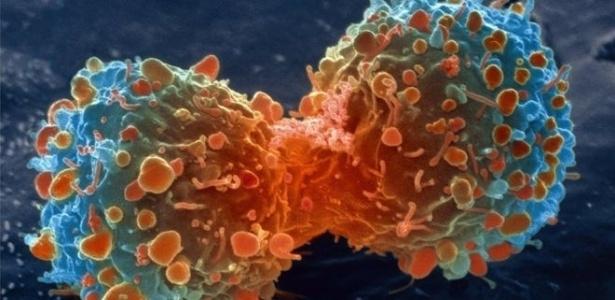 Cientistas descobriram quantas mutações são responsáveis por transformar células saudáveis am canceroras