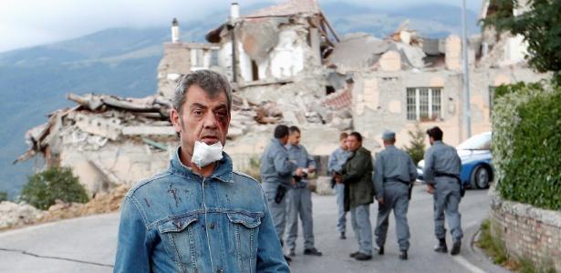Ferido caminha em estrada após terremoto em Amatrice, Itália