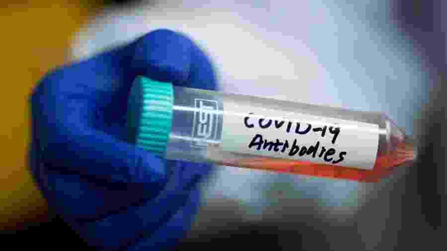 Estudo indica que coronavírus no Brasil evolui de forma mais controlada - THOMAS PETER