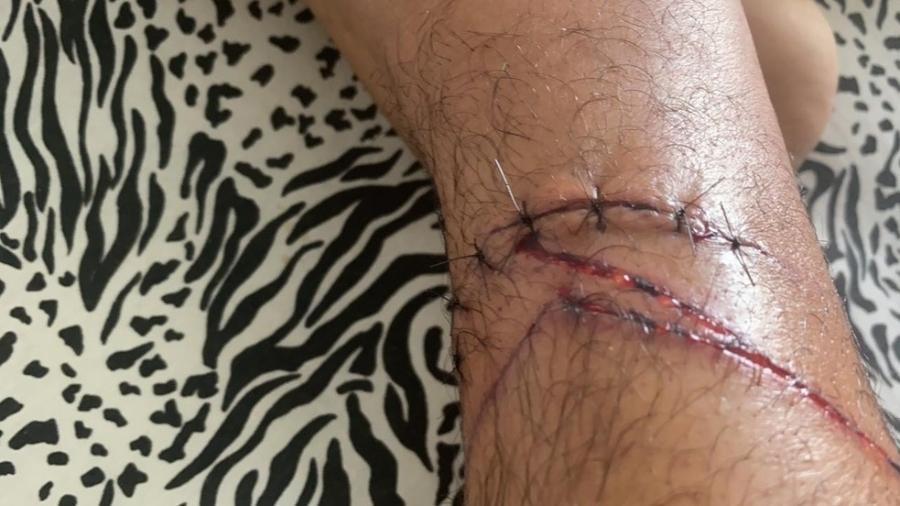 Fernando Soaris foi levado ao hospital pela mulher e levou pontos; depois, tomou vacinas - Acervo pessoal