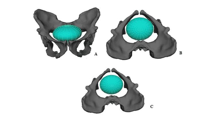 Reconstituição do parto numa Australopithecus sediba - LAUDICINA ET AL, 2019