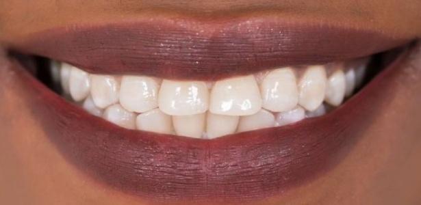 Nova droga estimularia regeneração extra dos dentes