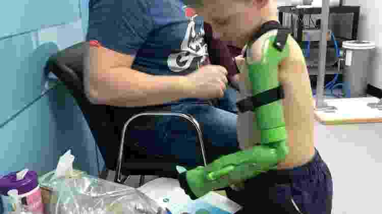 Jacob agora é capaz de segurar objetos com sua prótese funcional - Ben Ryan