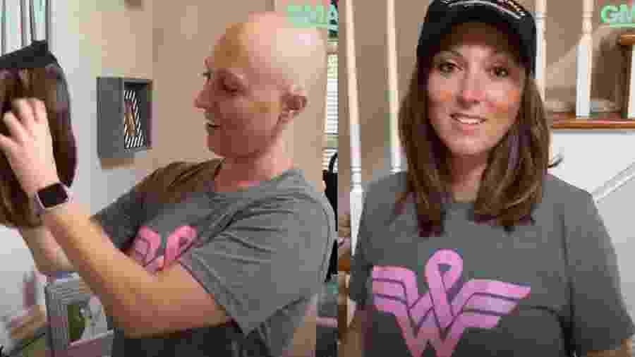 Dana McSwain, de 36 anos, foi diagnosticada com câncer de mama em estágio II  - Reprodução/ABC News