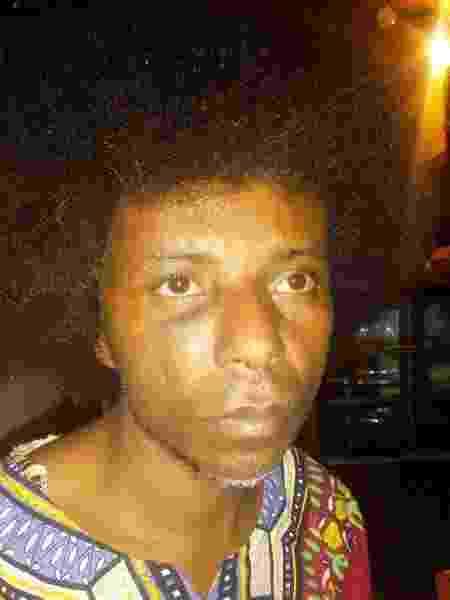 Daniel Oliveira dormia no carro quando foi atacado por três indivíduos no dia 12 de outubro - Arquivo Pessoal