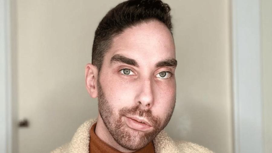 Atholl nasceu com problema congênito que causou paralisia no lado esquerdo do rosto dele - Reprodução/Instagram/@athollmills