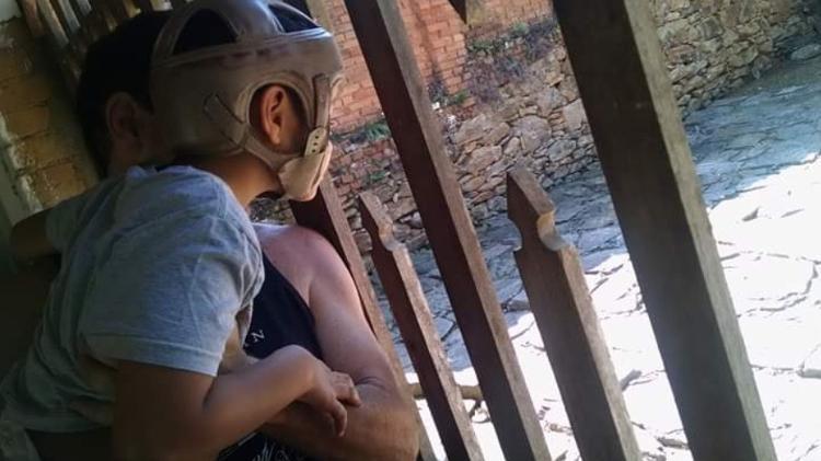 Vitor precisou usar um capacete especial para se proteger de quedas - Arquivo pessoal