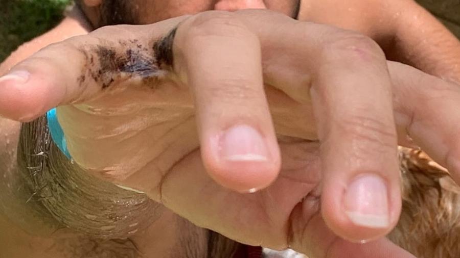 Charles Silva, 45, ficou com a mão suja com óleo na praia de Cupe, em Pernambuco - Arquivo Pessoal