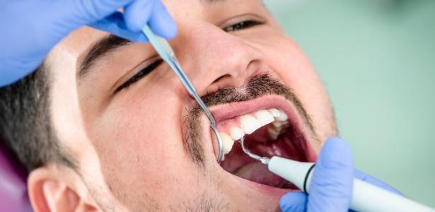 e9832915d Por que algumas pessoas têm cáries mesmo cuidando bem dos dentes ...