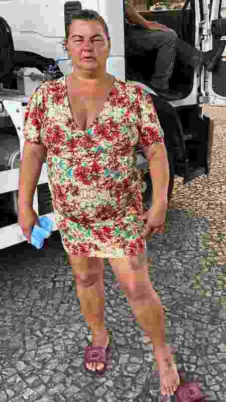 A cozinheira Margareth de Paula mostra o corte provocado por um estilhaço de bomba em seu pé - Paulo Sampaio/UOL - Paulo Sampaio/UOL