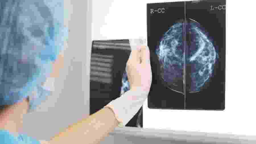 A inteligência artificial se mostrou ainda tão eficiente quanto dois médicos trabalhando juntos - Getty Images