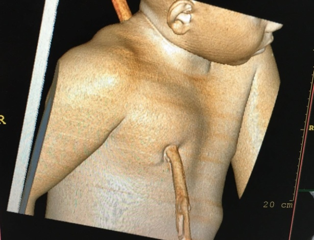 Hospital divulgou imagem da tomografia computadorizada que apontou o percurso que o pedaço de madeira atravessou o corpo do menino