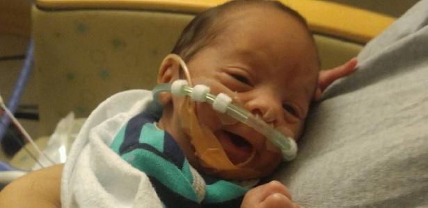 Esse é Ean. Ele nasceu empelicado, dentro de um carro e com 29 semanas de gestação - Reprodução/Instagram