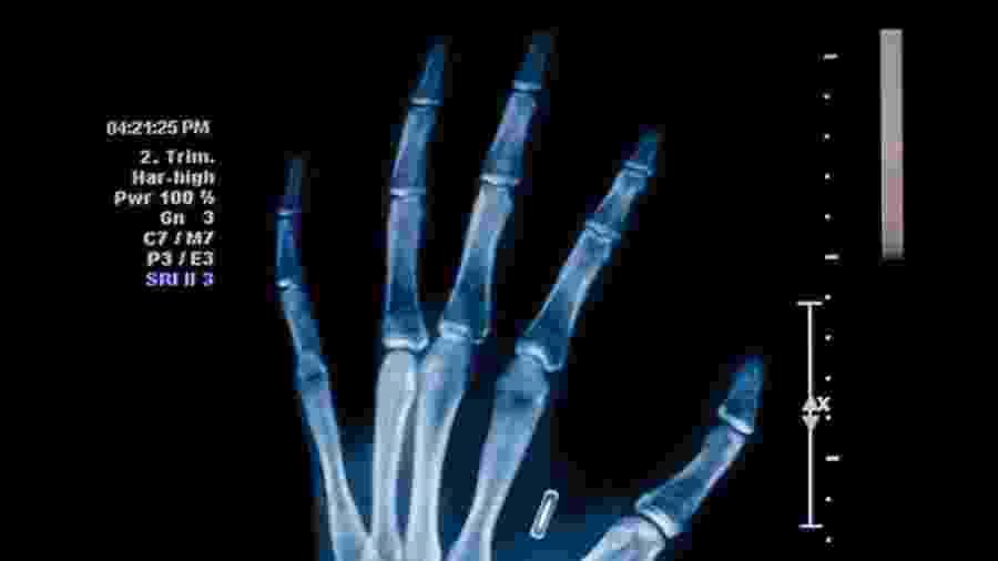 Você implantaria um chip na mão para pagar sem cartão? - Getty Images/iStockphoto