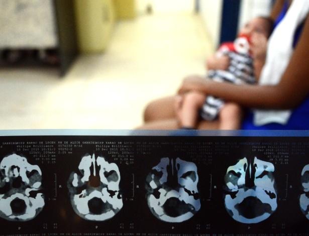 Mãe segura bebê com microcefalia em hospital do Recife - Xinhua/Diego Herculano/Brazil Photo Press/Agência Estado