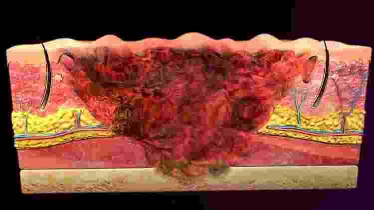 O tratamento depende da profundidade e extensão da queimadura - Getty Images - Getty Images