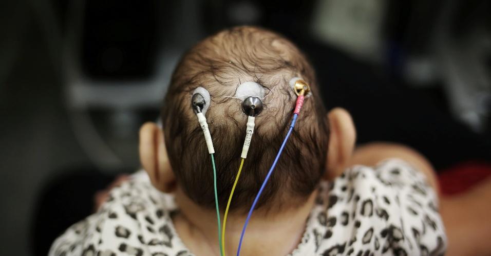 Com microcefalia, Laura, um dos filhos gêmeos de 5 meses de Jaqueline Jéssica Silva de Oliveira, passa por exame na USP (Universidade de São Paulo), na capital paulista. Os bebês foram identificados como um caso raro em que um deles nasceu com microcefalia e o outro, não