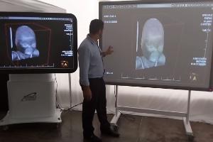 Empresa fatura R$ 2,6 milhões em 4 meses com boneco e imagem 3D de cadáver (Foto: Reprodução)