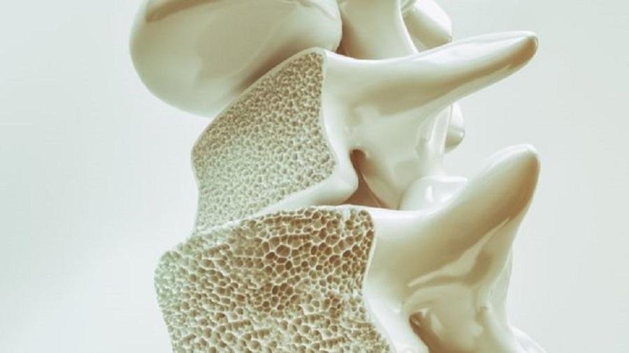 Osteoporose preocupa por não provocar sintomas e por tender a acometer mais pessoas com o aumento da longevidade; mulheres são mais afetadas - Getty Images