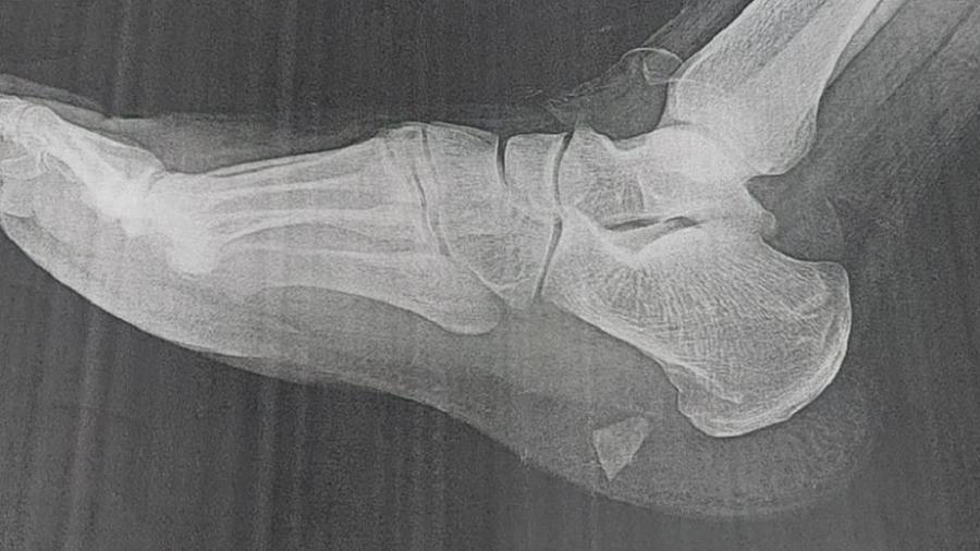 Sem conseguir atendimento, homem fica 5 meses com caco de vidro no pé - Arquivo pessoal