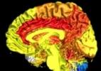 Journal of Alzheimer's Disease