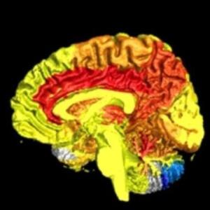Imagem mostra aumento do fluxo sanguíneo no cérebro de mulheres (na cor vermelho) em comparação com o de homens (na cor azul)