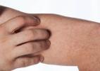 Adolescente diagnosticado com sarampo no DF tomou vacina duas vezes - Getty Images