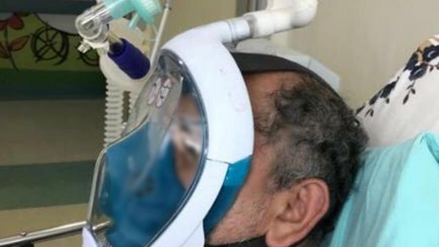 Paciente usa máscara de mergulho para realização da ventilação não invasiva na Fundação Santa Casa de Misericórdia do Pará - Divulgação