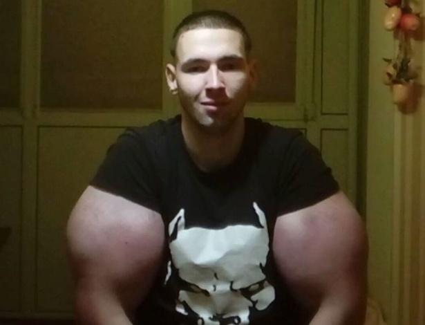 O russo Kirill Tereshin injetou óleo nos bíceps e foi duramente criticado na internet