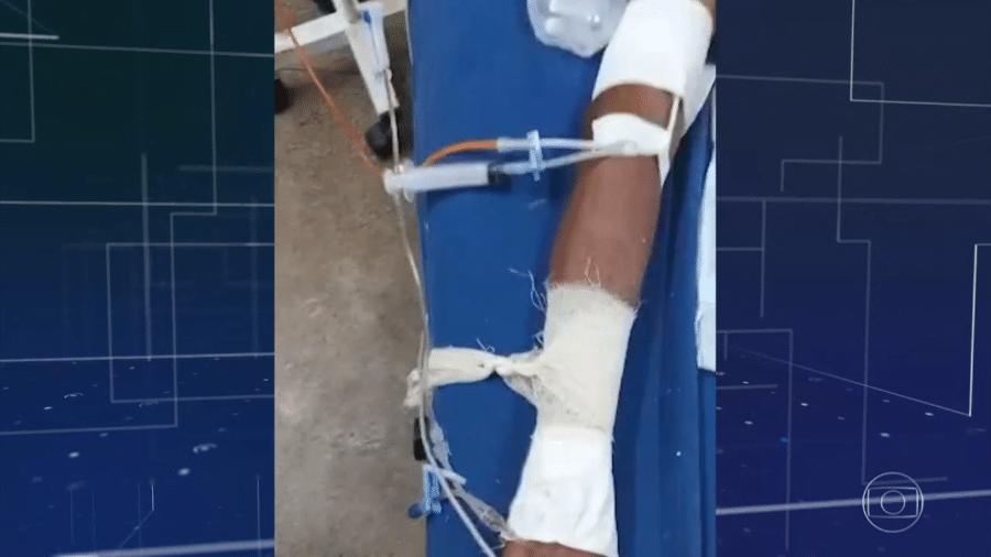 Inconscientes, pacientes passaram o fim de semana com gazes amarradas nos punhos e presas às camas - Reprodução/TV Globo