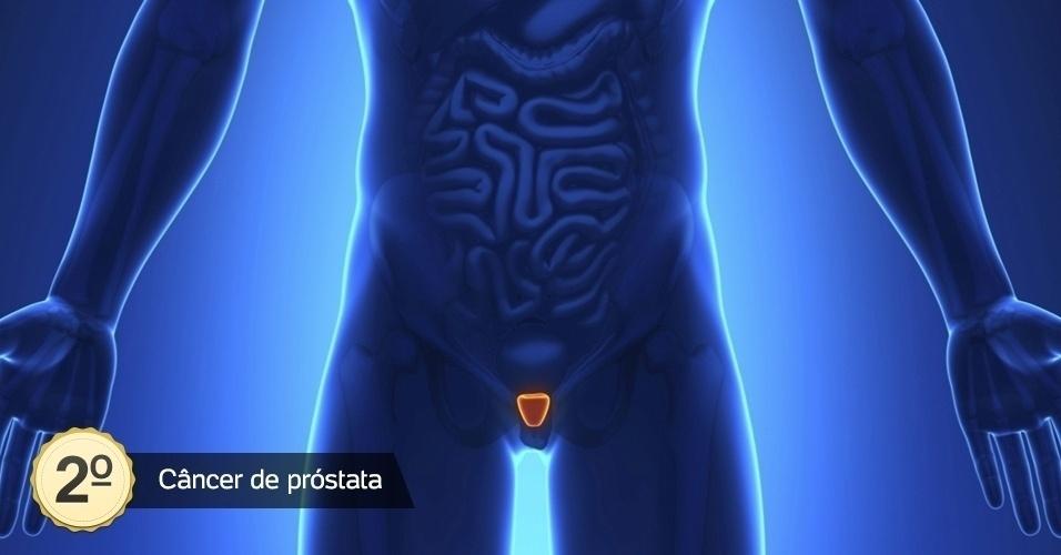 7.abr.2016 - O câncer de próstata será diagnosticado em 61.200 em 2016, segundo estimativa divulgada pelo Inca. Ainda de acordo com o instituto, em valores absolutos, este câncer é o sexto tipo mais comum no mundo e o mais prevalente em homens, representando cerca de 10% do total de cânceres. Sua taxa de incidência é cerca de seis vezes maior nos países desenvolvidos em comparação aos países em desenvolvimento
