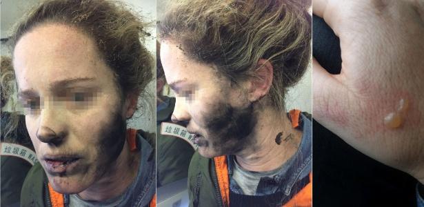 Incidente deixou passageira com manchas negras no rosto e bolhas nas mãos