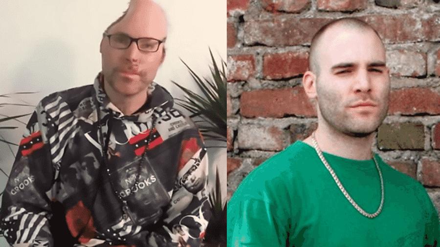 O rapper Dr. Knarf, antes e depois da explosão que o deixou em coma e o obrigou a removar parte do crânio - Montagem