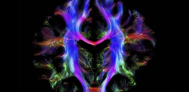Resultado de imagem para cérebro humano saudável