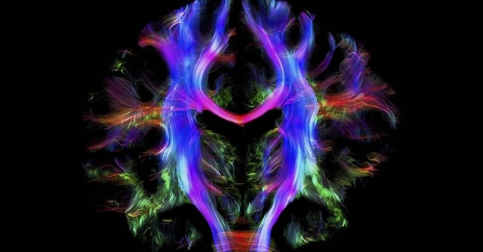 Um caleidoscópio de cores mostra um mapa dos caminhos dentro do cérebro de um jovem adulto e saudável. Partes diferentes do cérebro se comunicam com outras através de fibras nervosas. Usando uma técnica ligada a ressonância magnética, a imagem foi criada a partir do mapeamento de fatias virtuais do cérebro, feitas de cima para baixo, rastreando a direção e o movimento das moléculas de água