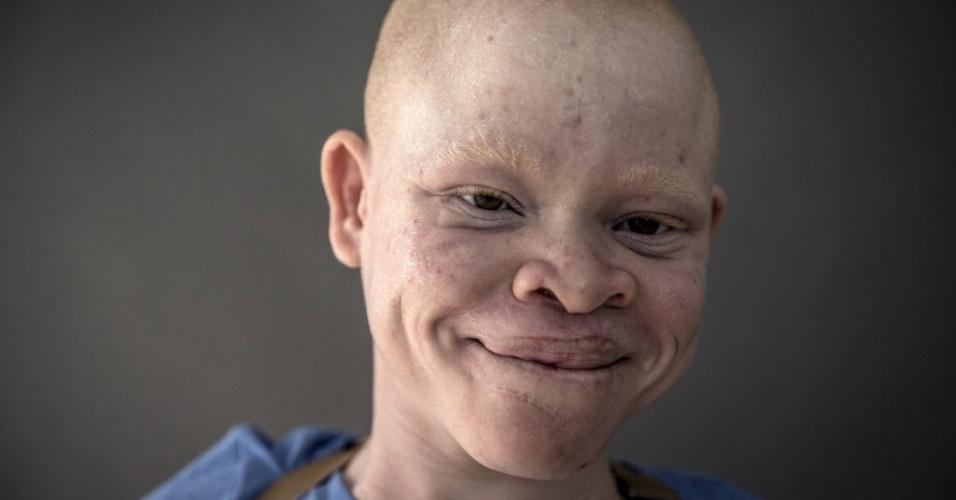 30.set.2015 - Emmanuel Festo, 13 anos, posa para um retrato no bairro de Staten Island, em Nova York, nos Estados Unidos. O garoto está entre os albinos resgatados da Tanzânia, onde há quem acredite que as partes do corpo de albinos são valiosas para rituais de feitiçaria e as vendam por preços altos. Alguns acreditam até que os membros são mais potentes e valiosos se a vítima gritar durante a amputação, de acordo com relatórios da ONU (Organização das Nações Unidas). A imagem é do dia 21 de setembro e foi divulgada nesta quarta-feira (30)