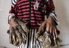 Verrugas de doença rara fazem mãos de jovem parecerem árvore - Abir Abdullah/Efe