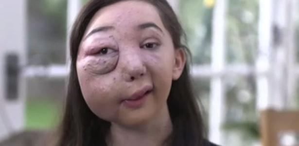 Nikki tem uma malformação arteriovenosa no lado direito do rosto e do crânio e pode ter hemorragias graves a qualquer momento - BBC