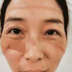 Médica hematomas - Reprodução/Twitter @PDChina