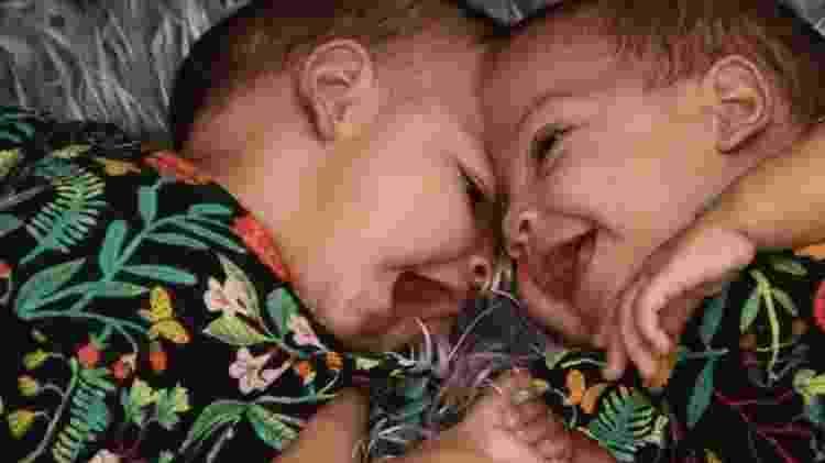As gêmeas Mel e Lis, antes da cirurgia de separação realizada no DF - Arquivo pessoal