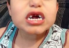 DF: Após B.O. da mãe, polícia conclui que menino perdeu dentes no parquinho - Reprodução/Facebook/Cinthia S. Santos de Almeida
