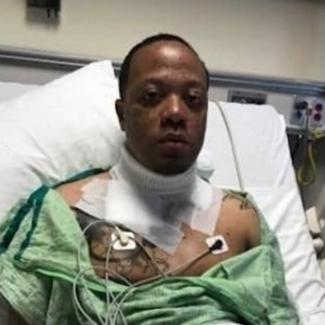 Homem sofreu queimaduras sérias quando colar encostou em cabo de iPhone