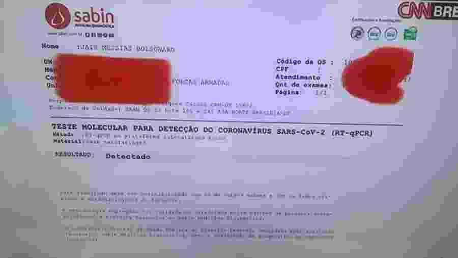 Exame do presidente Jair Bolsonaro (sem partido) que testou positivo para a covid-19 - Reprodução/CNN