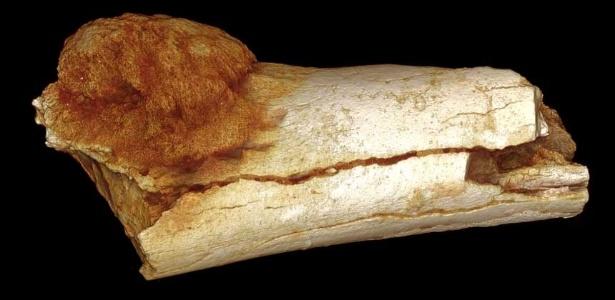 Um tumor achado no pé do fóssil de um hominídeo é o caso mais antigo de câncer potencialmente fatal na árvore genealógica humana