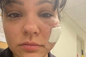 Durante atendimento | Paramédica dos EUA recebe mordida de quase 1 minuto no rosto