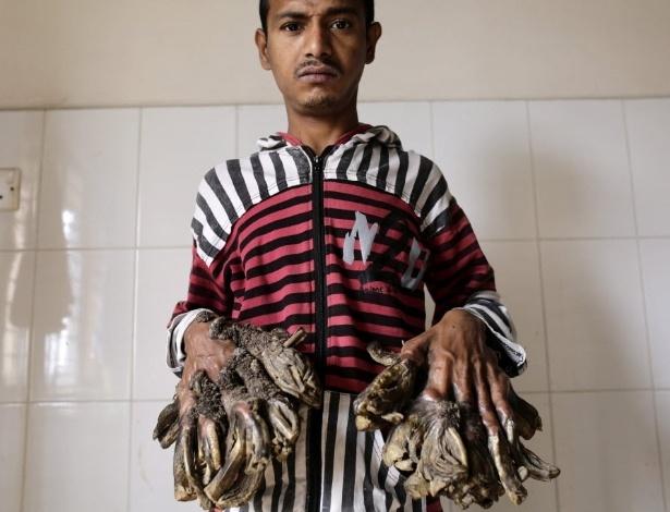 """4.fev.2016 - As verrugas que crescem nas extremidades do corpo cobriram as mãos e os pés de Abul Bajandar, lembrando os galhos de uma árvore. Por esse motivo, ele é chamado de """"homem-árvore"""""""